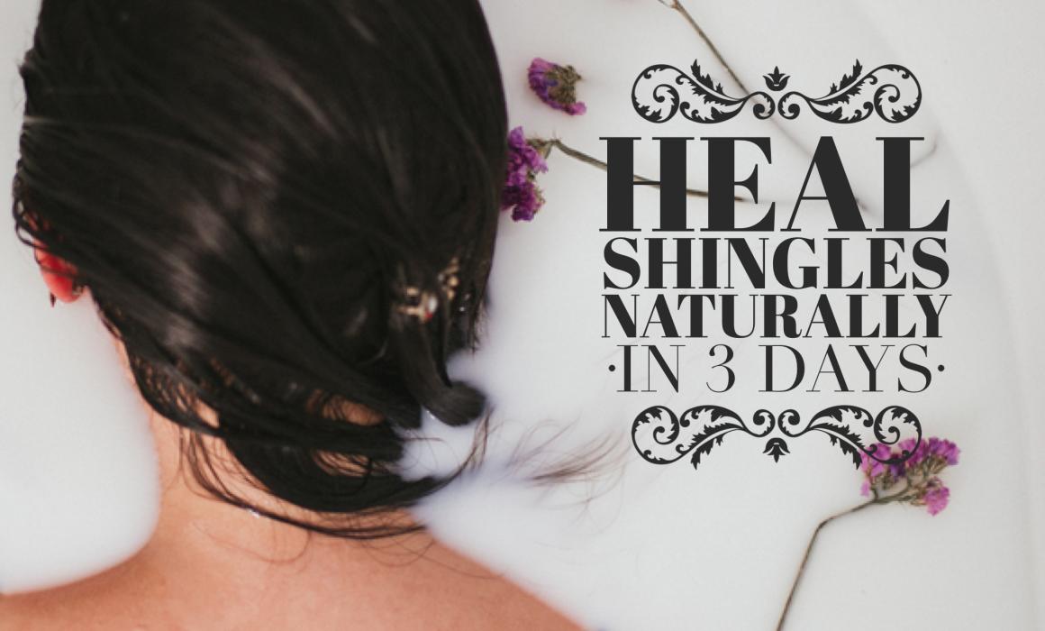 How to Heal Shingles Naturally , Home Remedies Shingles